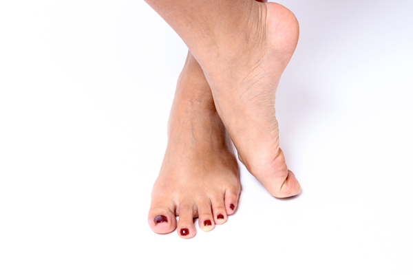 Arched Feet